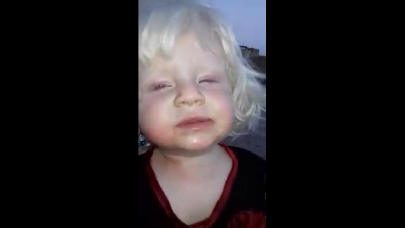 очень редко Девочка из города Telafer Red eyes baby in Iraq