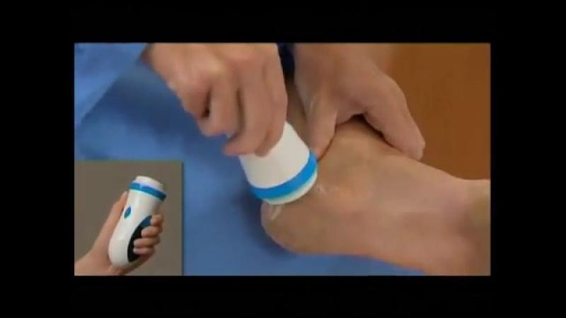 Компактная электрическая пемза Pedi Spin смотреть онлайн без регистрации