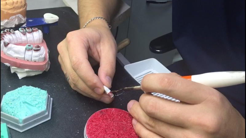 Этап изготовления металлокерамической коронки
