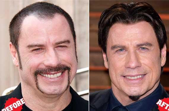 Фотографии гостей клиники - голова до и после пересадки волос.
