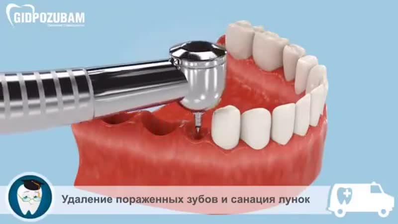 Стоматологические вставки