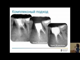 Татьяна Иванова Особенности эндодонтическиx заболеваний и их лечение при заболеваниях пародонта