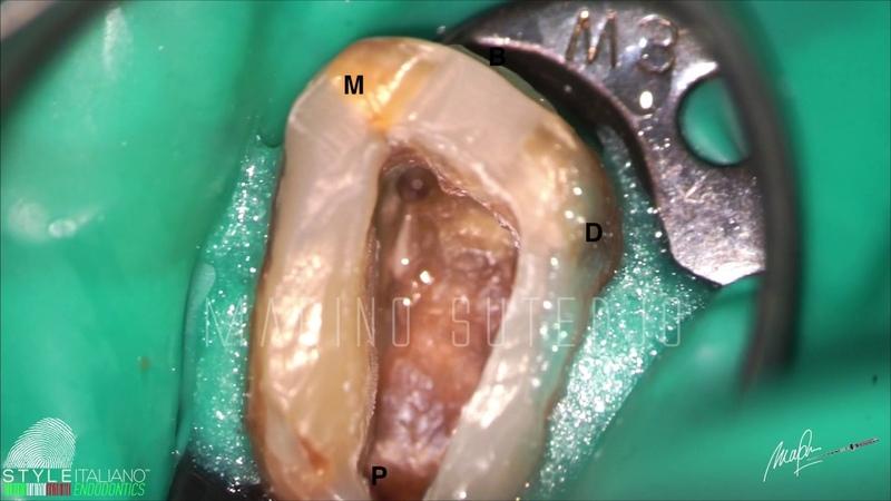 MB2 в верхних молярах как определить его наличие в зубе