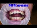 Безметалловый протез в области 1 1 и 1 2 зубов Стоматология 32 Друга г Ростов на Дону