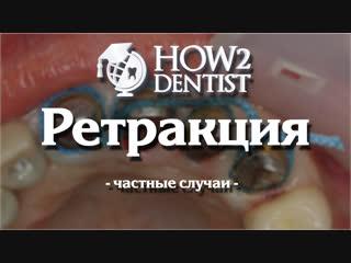 Как выполнить ретракцию при над и поддесневом препарировании / How to dentist