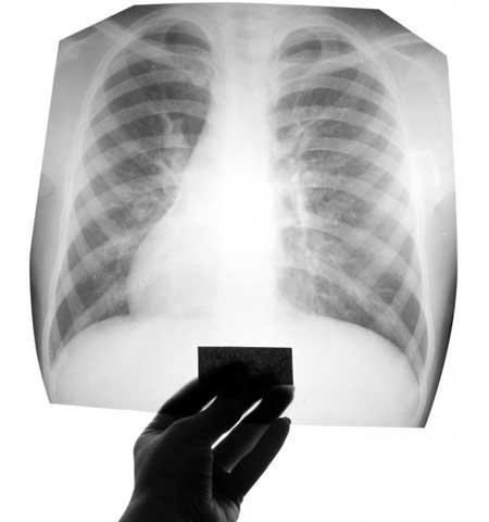 Врач может назначить рентген грудной клетки для диагностики рубцевания легких.