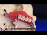 10 советов о наложении швов в стоматологии