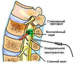 Эпидуральная инъекция стероидов в эпидуральный отдел.