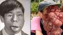Люди Мутанты, полная Жесть - 10 Людей с Шокирующими Деформациями Тела