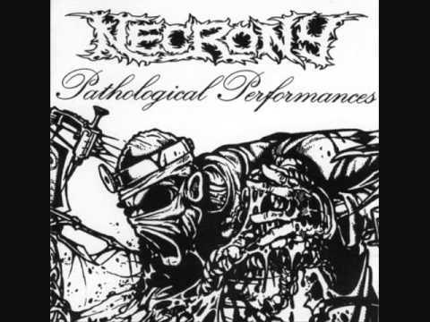 Necrony Acute Pyencephalus And Cerebral Decomposure