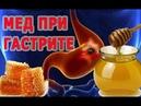 ★Мед при ГАСТРИТЕ Эти рецепты приведут в норму уровень кислотности желудочного сока