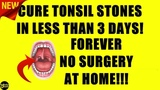 How To Get Rid Of Tonsil Stones FOREVER (2019) - FAST 3 Day Tonsil Stones Treatment!