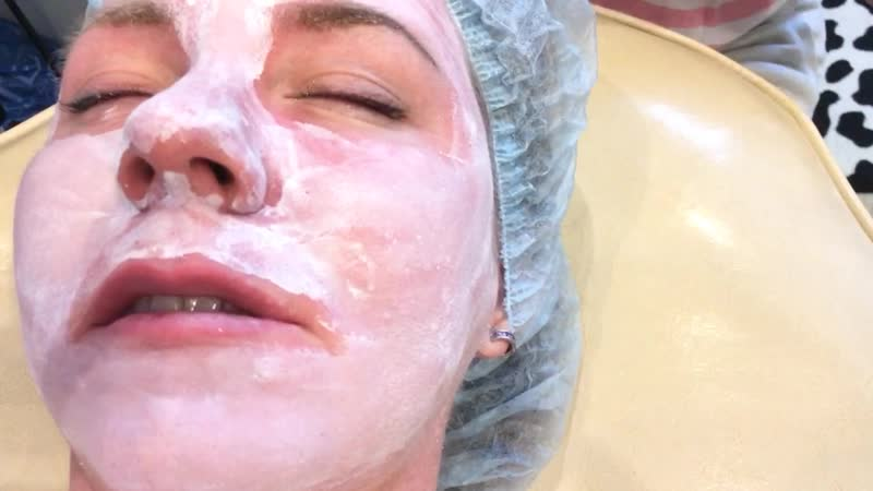 пилинг ТСА 25 skinproject nanopeel