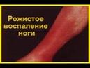 Как Избавиться от Рожи (болезнь - инфекционное заболевание) Совет от Андрея Дуйко