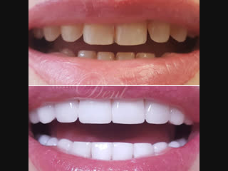 Perfect Smile Veneers - Дарят привлекательную белоснежную улыбку! (1)