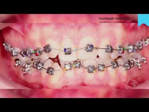 Видео 138 Прогресс в ортодонтическом лечении брекетами Damon Q за 9 месяцев