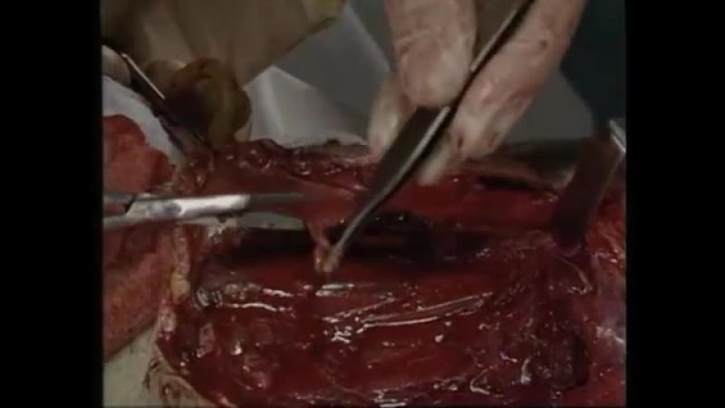 Фильм МККК о ранениях от противопехотных мин