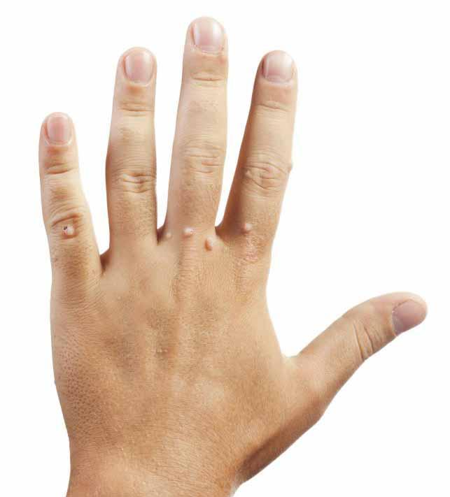 Удаление бородавки может считаться амбулаторной медицинской процедурой.