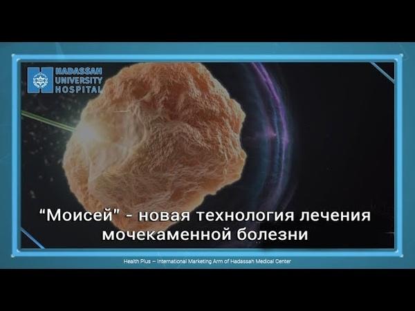 """""""Моисей"""" - новая технология лечения мочекаменной болезни в """"Хадассе"""""""