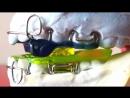MAD modificato. Ортодонтия. Аппарат итальянской лаборатории ORTHO REM