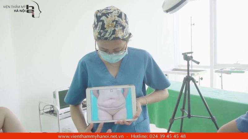 Trực tiếp bóc keo sau hơn 10 ngày phẫu thuật tạo hình thành bụng