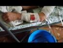 Атака дрона Угил в Саханке. Раненный рассказывает как он получил ранение.