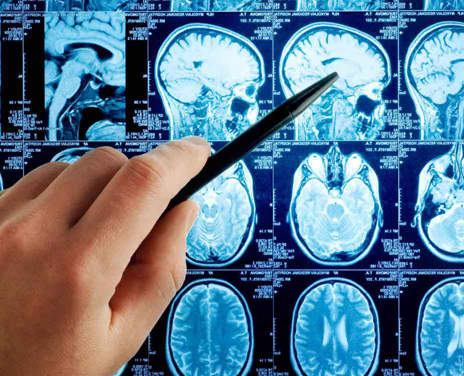 Существует множество причин, по которым невролог может посоветовать, что у пациента выполнена процедура визуализации магнитного резонанса мозга (МРТ)
