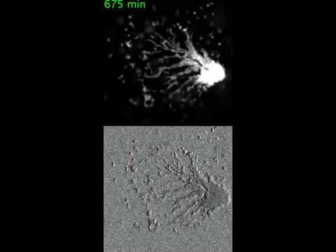 Aggregation of approximately 180 social amoebae