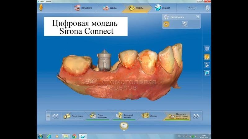 Немедленная имплантация зубов с Sirona
