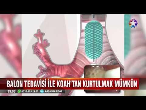 Türkiyede ilk defa uygulanan Balon sistemi ile KOAH Tedavisi yapılıyor