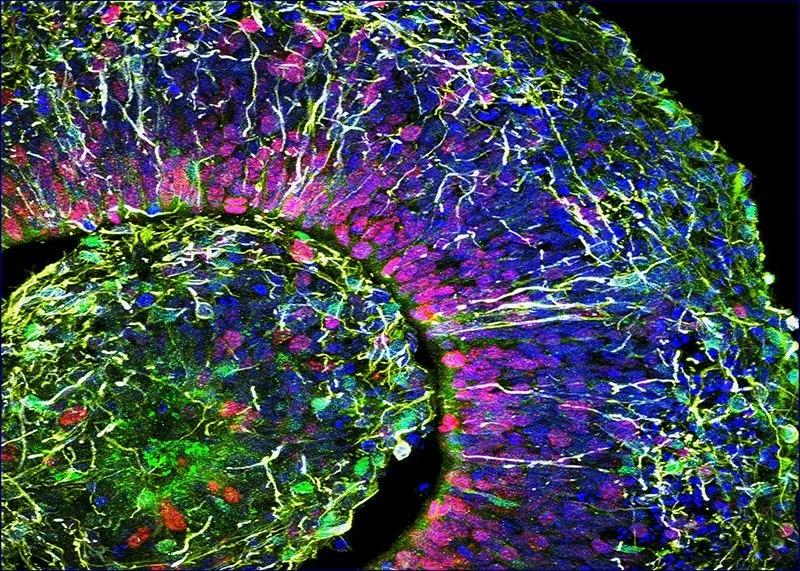 «Мини-мозги», выращенные в лаборатории, производят электрические импульсы, похожие на импульсы недоношенных детей