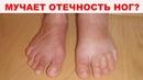 10 САМЫХ ЭФФЕКТИВНЫХ народных способов как избавиться от отеков ног Средства проверенные годами