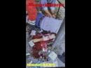 Ravensburg am 28 September 2018 MESSERKULTUREN mit 3 Opfern Täter festgenommen KOMPLETT und UNZENSIERT