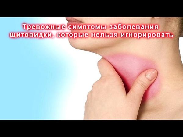 Тревожные симптомы заболевания щитовидки, которые нельзя игнорировать