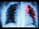 Микроскопические Убийцы Туберкулёз National Geographic