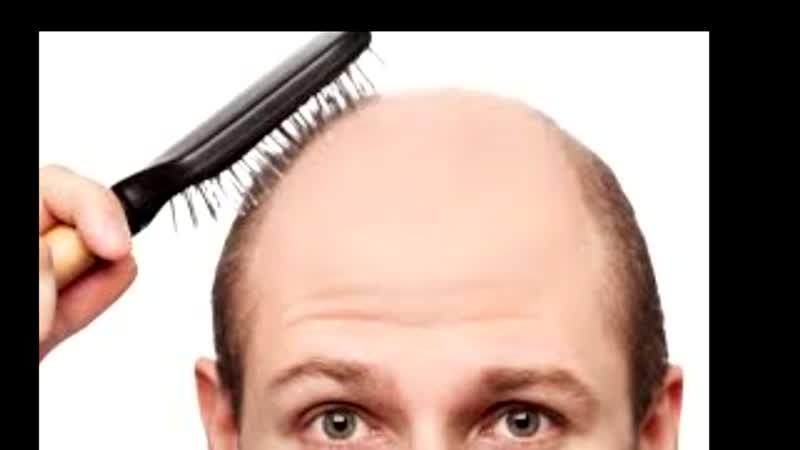 Что поможет против облысения - средства и способы восстановления волос