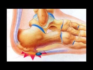 Почему болят пятки ног Рассморим 7 основных причин