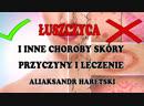 Łuszczyca i inne Choroby Skóry Przyczyny i Leczenie Aliaksandr Haretski