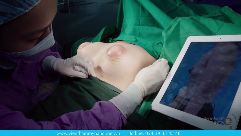 Cận cảnh vòng 1 đầy đặn ngay sau phẫu thuật nâng ngực nội soi tại bênh viện