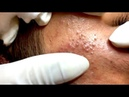 How to Get Rid of Blackheads Whiteheads on The Face Easy - Acne Treatment (Part 66)