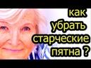 Возрастная пигментация как убрать старческие пятна на коже ПРОСТОЙ ЭФФЕКТИВНЫЙ СПОСОБ топ5хайп