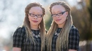 Twins With Albinism Wear Their Condition With Style | SHAKE MY BEAUTY