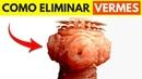 🔴 LIVRE-SE DOS VERMES DE UMA VEZ POR TODAS | Tratamento Completo com Prof. Jaime Bruning