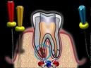 Осложнения при лечении пульпита Попадание пломбировочного материала за пределы корня зуба