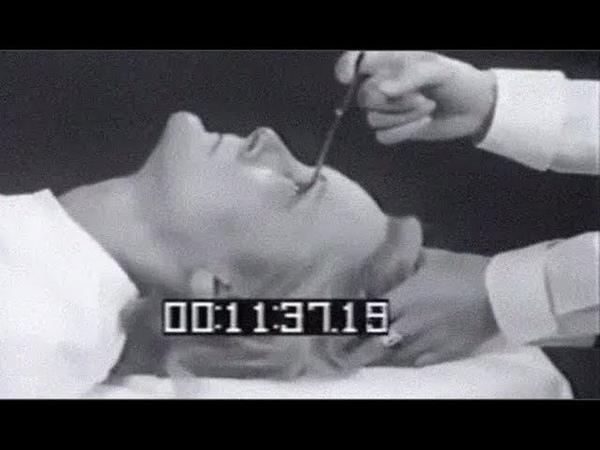 Neon - Lobotomy (video)