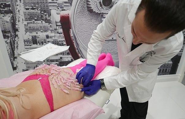 Паутина из иголок - новая жутковатая процедура подтяжки задницы Косметологи предлагают дамам все больше способов оставаться вечно молодой. Ну или хотя бы тешить себя иллюзией, что так оно и