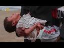 20 Million Starving Yemenis Fueling the Saudi US NATO War Machine