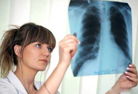 Рентгенография грудной клетки делается для просмотра легких.