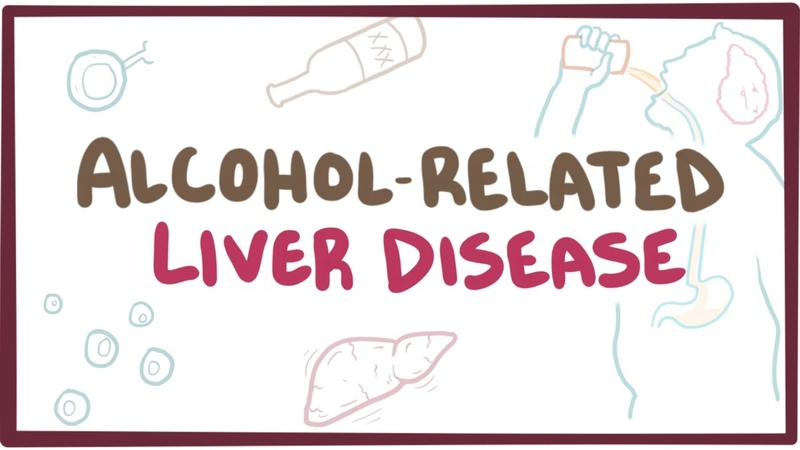 Alcohol-related liver disease - causes, symptoms pathology