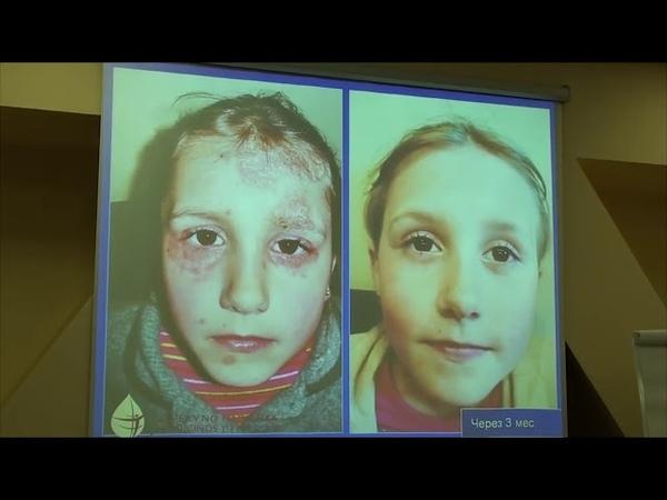 Как ELEV8 борется с паразитами Лариса Тарасова, 19 11 2017